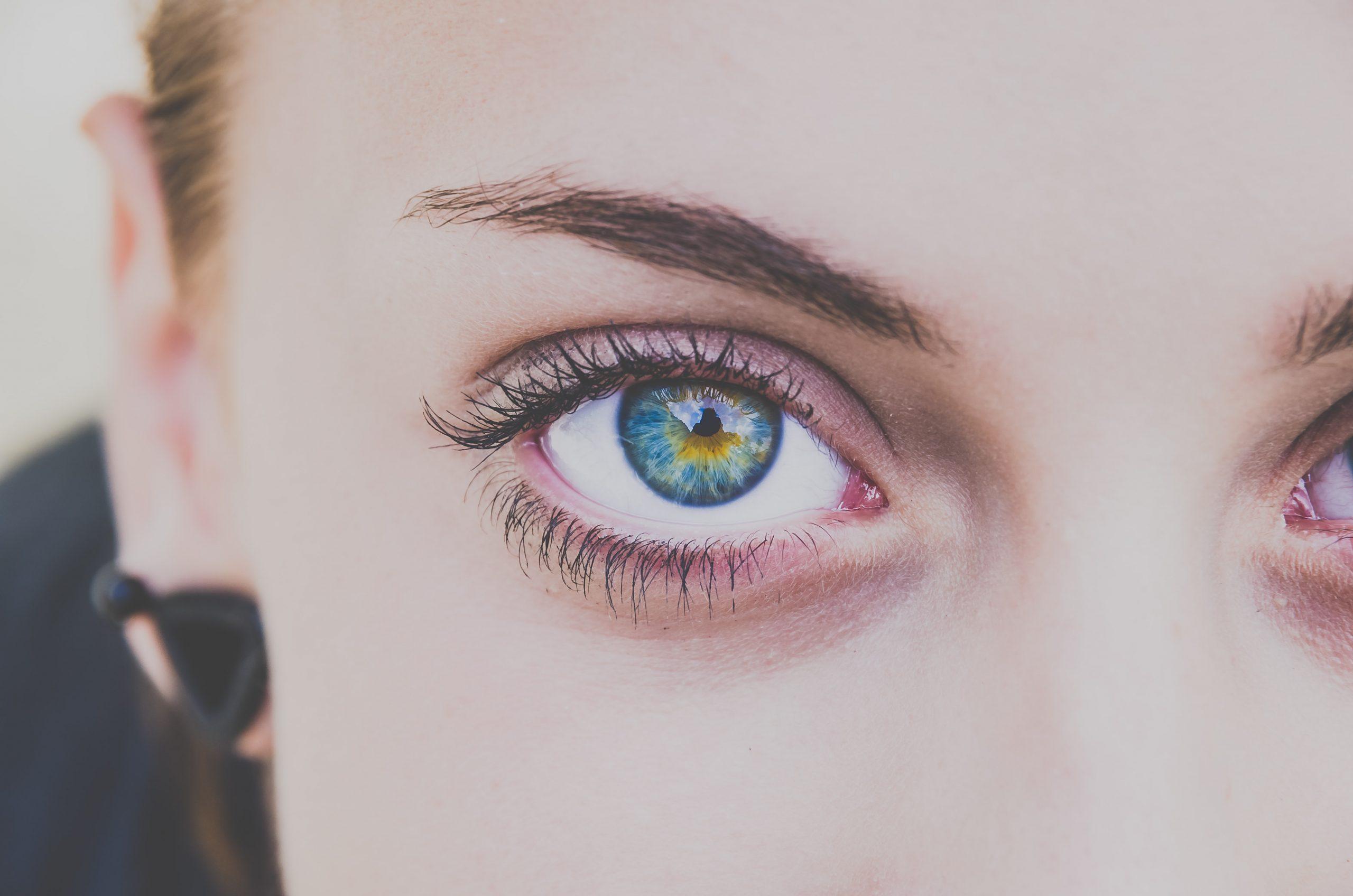 orgoglio occhiaie sfoggiarle è un trend
